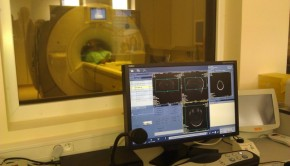 ICNT badanie mózgu